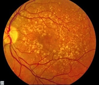 Results of Neural Stem Cells for Macular Degeneration to be Presented at Ophthalmology Conference | Stem Cells Freak | Stem Cells | Scoop.it
