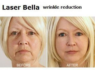 Diminish The Unwanted Signs of Aging Through Laser Wrinkle Reductio | Laser Hair Removal | Scoop.it