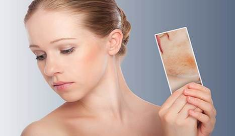 The Most Effective Methods to Remove Scars | fitness for men and women | Scoop.it
