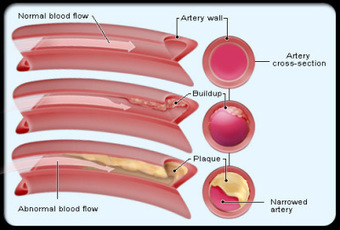 atherosclerosis is caused by