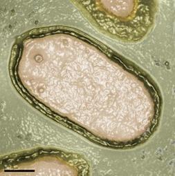 Pandoravirus, bigger and unlike anything seen before | Aquatic Viruses | Scoop.it