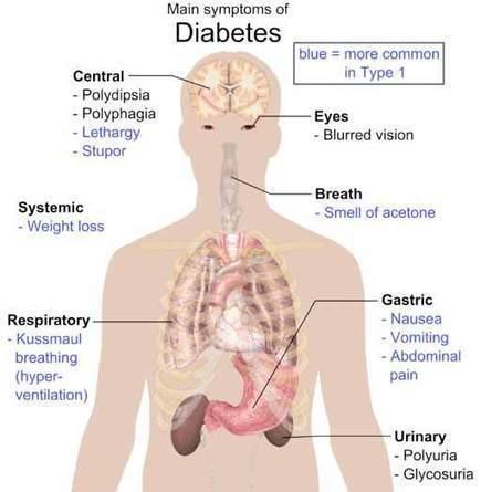Diabetes Symptoms - DINAMO: Diabetes No More!   Dinamo   Scoop.it