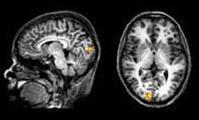 Learning to control brain activity improves visual sensitivity | Machines Like Us | Cognitive Psychology. Cognitive and behavioural Neuroscience | Scoop.it