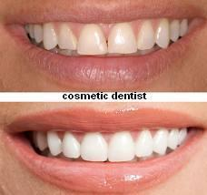 Cosmetic Dentistry Sector Woos Women by Alice jonathan | Health care | Scoop.it
