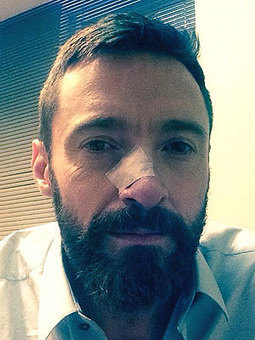 Hugh Jackman Treated for Skin Cancer Again | Podiatry and Dermatology News | Scoop.it