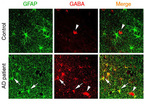 Discovery of abnormal GABA levels may lead to improvements in diagnosing, treating Alzheimer's disease | KurzweilAI | Longevity science | Scoop.it