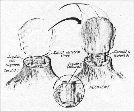 La greffe totale de tête en vue grâce à une colle polymére pour relier la moelle épinière (GEMINI) Canavero S - Surgical Neurology International | Eléments d'économie,de technologies, de sciences | Scoop.it