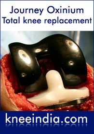 Bilateral knee replacement Chennai | Best knee replacement specialist Chennai, India | Unilateral and Bilateral Total Knee Replacement Surgery | Scoop.it