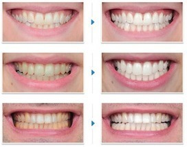 Teeth Healthy: Natural teeth whitening products   record   Scoop.it