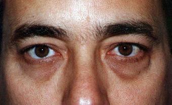 Vitamin Untuk Hilangkan Lingkaran Hitam Di Bawah Mata | kecantikan kesehatan hobi | Scoop.it