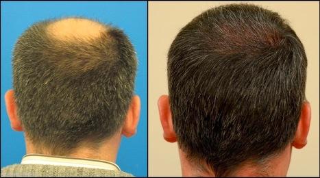 Get Proper Awareness Regarding Natural Hair Re growth   Natural Hair Restoration   Scoop.it