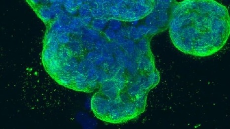 Light and acid kill cancer cells from the inside out | Longevity science | Scoop.it
