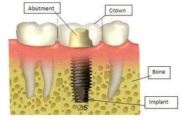 Dental Implants Burien Wa, Seatac Wa, Tukwila WA, Kent WA & Renton WA - Dental Implants Periodontist | Tooth Extraction in Victorville CA | Scoop.it