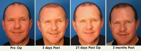 Hair Transplant is a Permanent Solution for Baldness or Hair Loss ~ The Web Blogs - SEO Friendly Guest Blogs | Health | Scoop.it