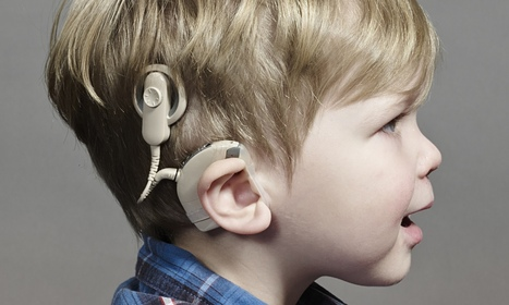 Bionic ears: let's hear it for cochlear implants… | Managing Technology and Talent for Learning & Innovation | Scoop.it