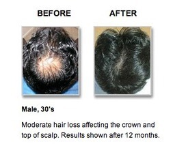 Treating Hair Loss With Revivogen - The Los Angeles Fashion magazine | beauty | Scoop.it