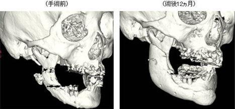 Organ Regeneration Technology Versus 3D Bio-Printing - h+ Magazine | Bio issues | Scoop.it