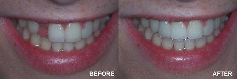 Dental Bridge Procedure, Dental Bridge Replacement Delhi, Dental Bridge Treatment Hospital India | How Much Do Teeth Implants Cost, Tooth Implants | Scoop.it