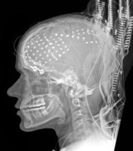Electrodes Stuck in the Brain Show How Thought Becomes Speech   80beats   Discover Magazine   Cognitive Science   Scoop.it
