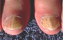 Fungal Nail Infection Treatment | Medical Pedicure Toronto | Scoop.it