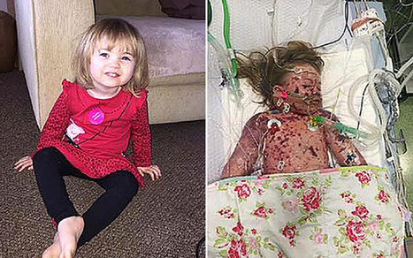 Parents release heartbreaking image of girl, two, dying of meningitis as 250,000 sign vaccine petition   Child Health and Safety   Scoop.it