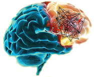 Mutated Genes in Schizophrenia Map to Brain Networks | Amazing Science | Scoop.it