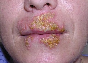 Herpes Simplex Treatment And Medication | online pharmacy | Scoop.it