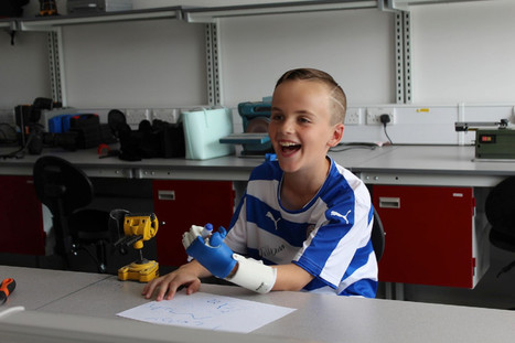 La impresión 3D utilizada para crear prótesis de mano para un niño de 8 años de edad | digitaltrends | eSalud Social Media | Scoop.it