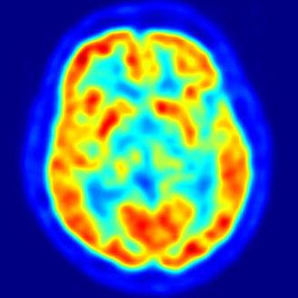 La curiosidad influye sobre el cerebro y mejora el aprendizaje | Educación Superior - Higher Education | Scoop.it