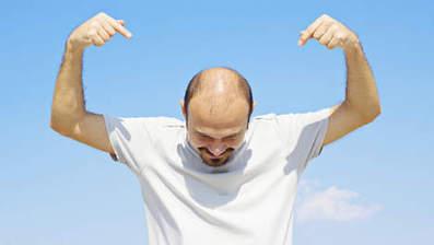 La calvitie masculine: un danger pour la santé? | Mais n'importe quoi ! | Scoop.it