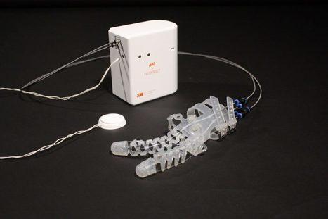 Guante robótico blando para ayudar a personas con parálisis en la mano | eSalud Social Media | Scoop.it