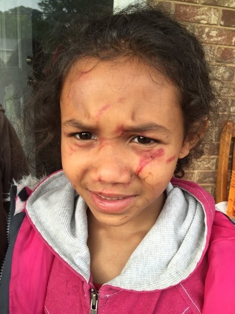 6-year-old attacked by 5th grader in school bathroom | anonymous activist | Scoop.it