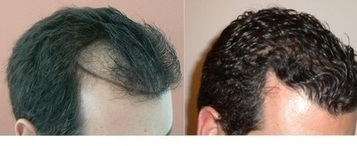 Types of Hair Transplant Surgery Performed   Royal Cosmetic Surgery   Scoop.it