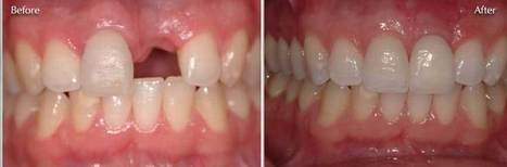 Dental Implants in Delhi, Dental Implants Clinic in Delhi, Delhi Dental Implant | Dental Implants | Scoop.it