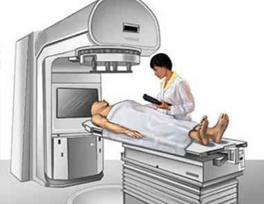 Trop de radiothérapie prescrite contre le cancer du sein   Toxique, soyons vigilant !   Scoop.it