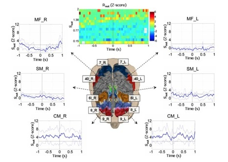 Brain Network Analysis From High-Resolution EEG Recordings by the Application of Theoretical Graph Indexes | Highlights | Scoop.it