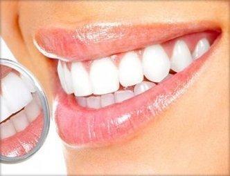 Denti bianchi 29E in Montenapoleone presso MEDICAL GROUP AESTHETIC - Groupalia Milano | Offerte Youppit | Offerte Milano | Scoop.it