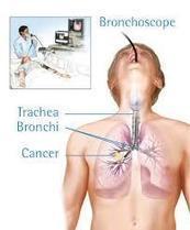 Obat Penghancur Tumor Di Paru-Paru Tradisional | Agen Resmi Green World | healt | Scoop.it