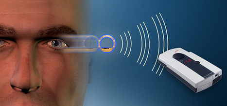 Wireless Eye Implant Continuously Measures Intraocular Pressure (VIDEO)   Ophthalmology and Ocular Diseases   Scoop.it