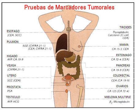 ¿QUÉ SON LOS MARCADORES TUMORALES ? ¿CUANTOS TIPOS HAY? | Salud Publica | Scoop.it