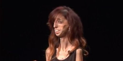 Labeled 'World's Ugliest Woman,' Motivational Speaker Turns Hate Into Love | techno-phy | Scoop.it