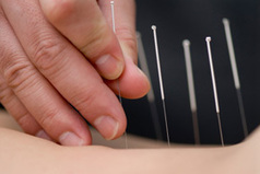 "Western medical doctor, Dr. Weil, on the mechanisms of acupuncture: ""Respiratory conditions, including sinusitis and asthma have been relieved with acupuncture"" 