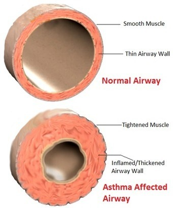 How Asthma Affects the Body? | Asthma -- The Disease of the Airways | Scoop.it