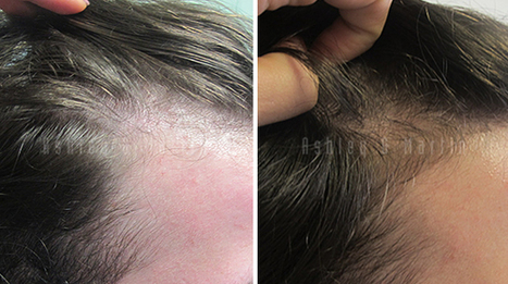 Client Amazed and Overjoyed with Results From Ashley and Martin Treatment | Hair Regrowth | Scoop.it