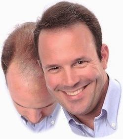 Best Natural Hair Loss Treatment   Natural Hair Restoration   Scoop.it