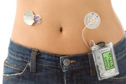 Artifical Pancreas for Type 1 Diabetics Approved by FDA | Mobile Health: How Mobile Phones Support Health Care | Scoop.it