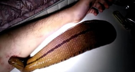 Man Keeps Giant Leech for a Pet, Lets It Feed on His Arm | Strange days indeed... | Scoop.it