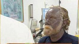 Man with blue skin dies at 62: Unlikely his condition was responsible - Los Angeles Times   Dermatology Mosaic   Scoop.it