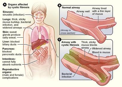 Cystic fibrosis signs & symptoms | BCHS Graeme | Scoop.it