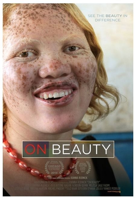 Documentary highlights the beauty of people with genetic conditions... | Art for art's sake... | Scoop.it